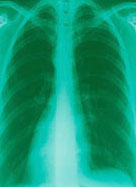 Xray of mesothelioma affected lungs